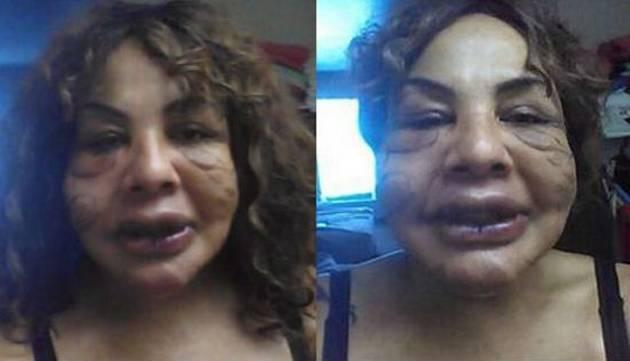 Así luce la mujer que se inyectó cemento en el rostro