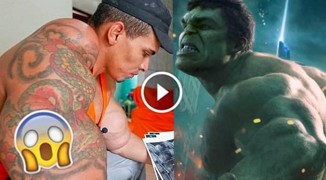 Hombre quiso parecerse a Hulk y casi pierde los brazos