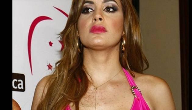 Milett Figueroa sufre alergia y podría dejar el Miss Perú Universo