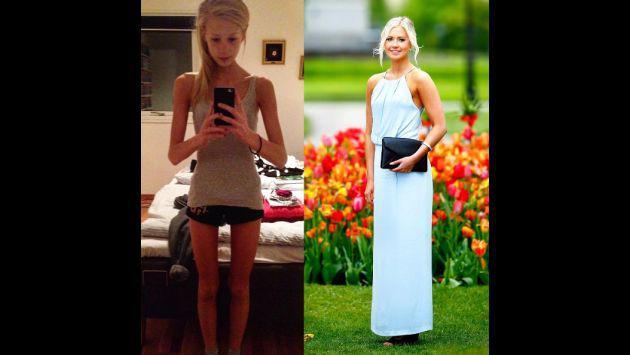 ¡Venció la anorexia y ahora luce figura envidiable!
