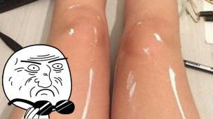 ¿Por qué esta foto de unas piernas genera tanta controversia en Internet?