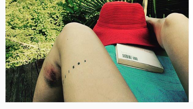 ¡Así quedó Bárbara Mori tras ser atacada por cuatro perros! [FOTO]