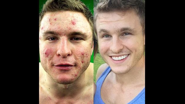 Este fisicoculturista sorprende en Instagram por su forma de eliminar el acné