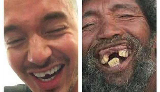 J Balvin se rompió un diente y publicó un video donde lo muestra