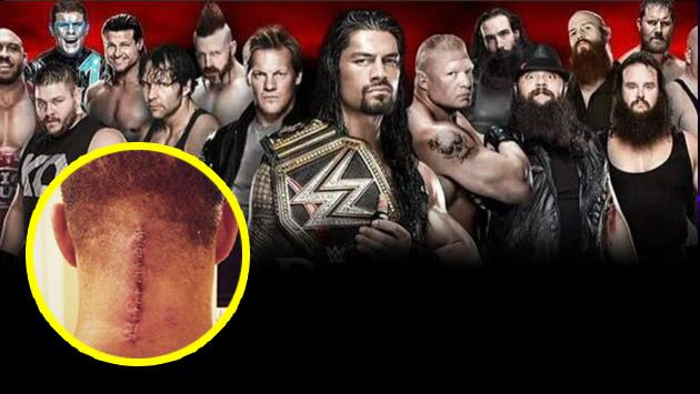 ¡Uy, no! Este luchador de WWE no volverá a pelear nunca más por terrible lesión