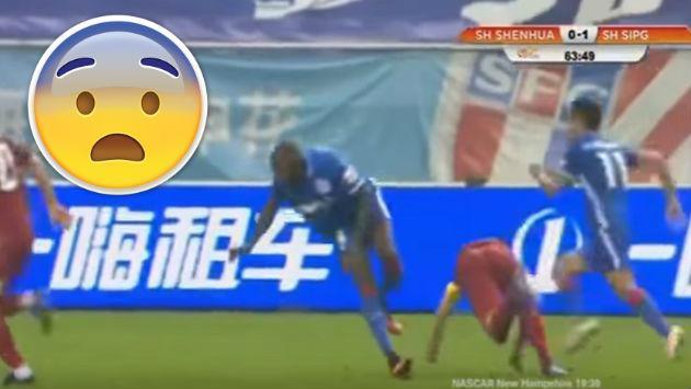 ¡Jugador francés sufrió terrible lesión en el fútbol de China!